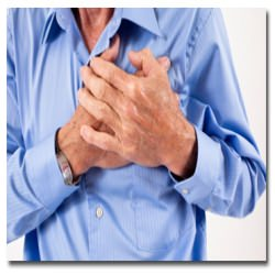 Heart Attack | Myocardial Infarction